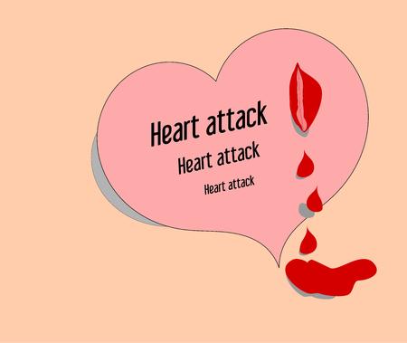 stress test: Heart attack on a pink background-vector illustration Illustration