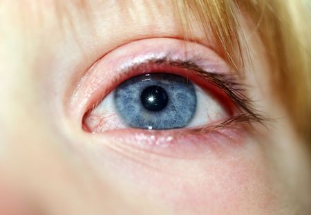 eye of child, close-up of blue iris with white of eyeball looking red and poorly  Stock Photo