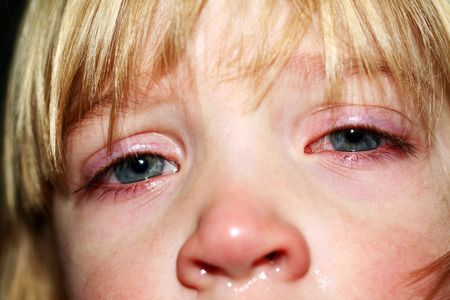 face of ill child. unwell sick boy with pain and flue or virus Stock Photo