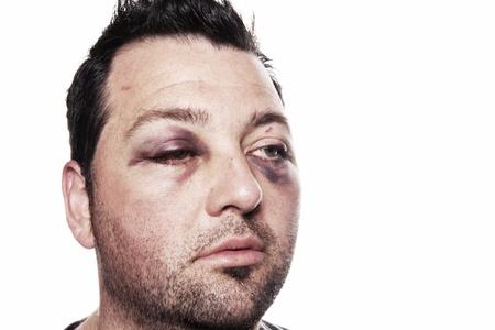 lesioni agli occhi, di sesso maschile con l'occhio nero isolato su bianco. uomo dopo incidente o scontro con lividi Archivio Fotografico