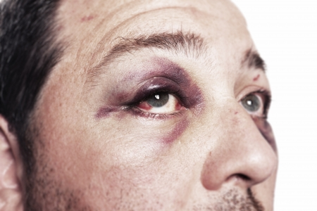 health care fight: eye injury, male with black eye isolated on white. man after accident or fight with bruise