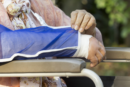 fractura: Superior de la mujer con un brazo roto en un molde de yeso