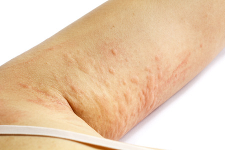 sarpullido: erupción cutánea alérgica del brazo del paciente Foto de archivo