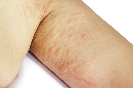 rash: allergic rash skin of patient arm