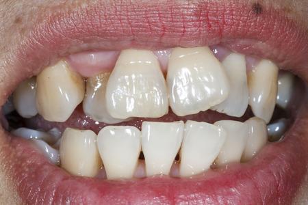 anterior: Patient teeth before orthodontic brackets