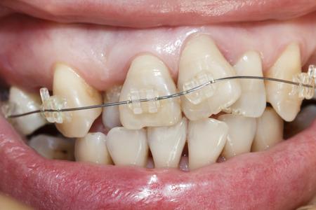 ortodoncia: Primer plano de la boca los dientes torcidos con los apoyos