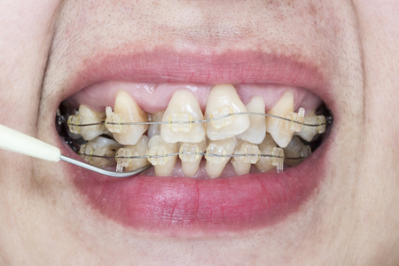crooked teeth: Close-up mouth of crooked teeth with braces and plaque remover Stock Photo