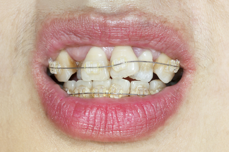 crooked teeth: Close-up mouth of crooked teeth with braces