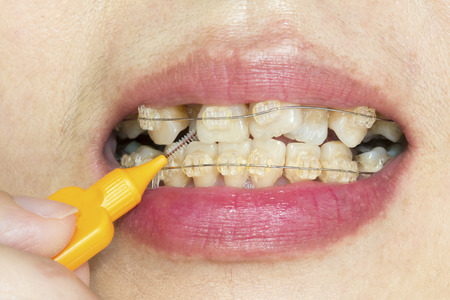 impacted: Close up crooked teeth with braces, interdental brushing