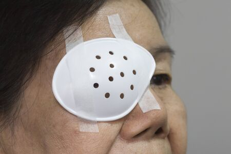 ophthalmic: Eye shield covering after cataract surgery. Stock Photo