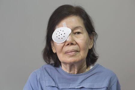 cataract: Eye shield covering after cataract surgery. Stock Photo