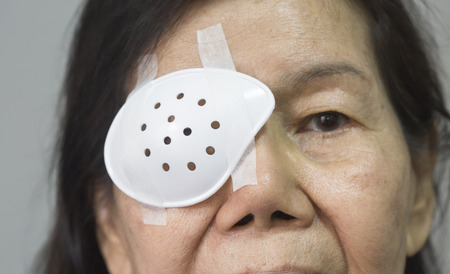 cataract: Eye shield covering after cataract surgery. Stock Photo