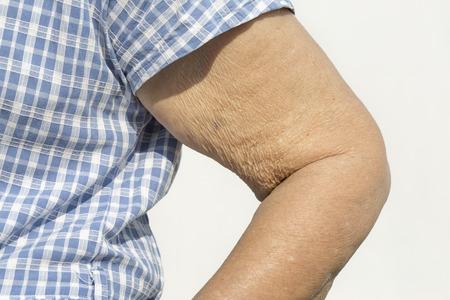 Elderly woman wrinkled skin upper arm