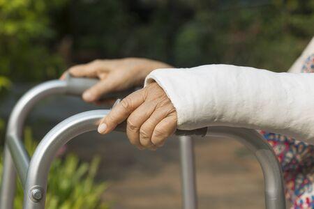 persona de la tercera edad: Mujer mayor muñeca rota utilizando andador en el patio trasero. Foto de archivo