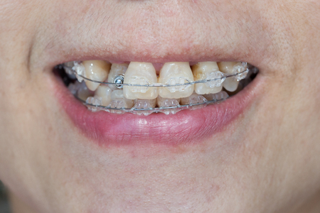 crooked: Close-up mouth of crooked teeth with braces