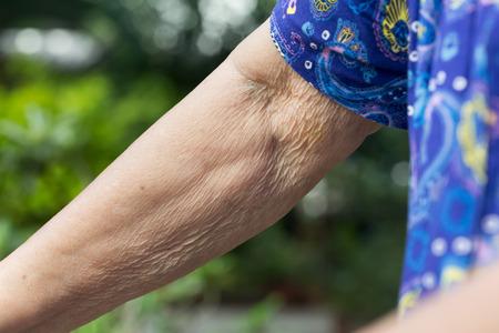 arrugas: arrugas de la piel de edad avanzada