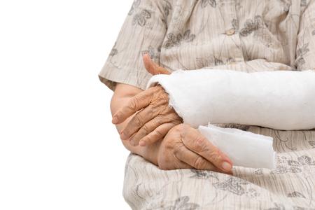 adult bones: Senior women with broken arm