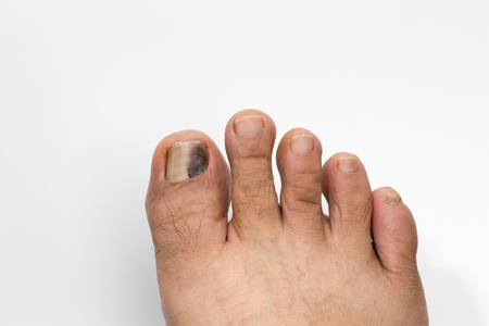 toenail: Black and Bruised Toenail on white background
