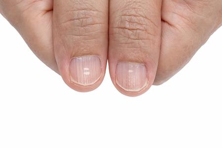 白い斑点や爪症状欠乏ビタミンの垂直方向の尾根 写真素材