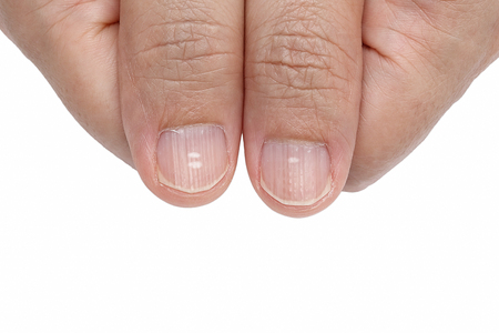 White spots and Vertical ridges on the fingernails symptoms deficiency vitamins Фото со стока