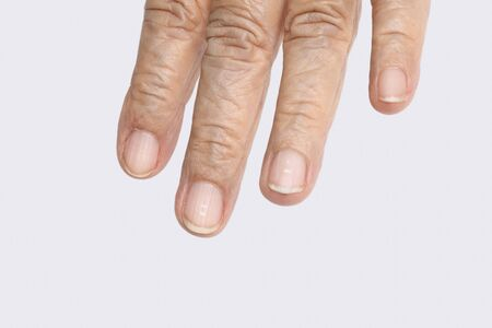 White spots on elderly fingernails caused by a calcium deficiency