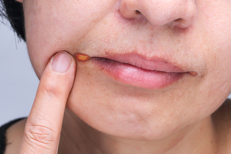 Angular cheilitis is a type of common inflammation of the lips Stock fotó - 79397383