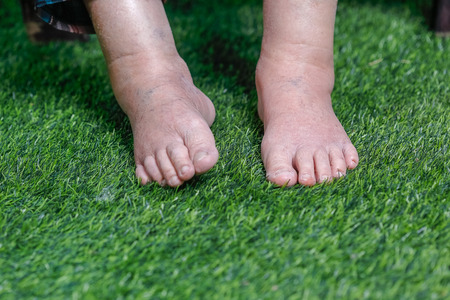 Elderly woman bare swollen feet on grass Standard-Bild