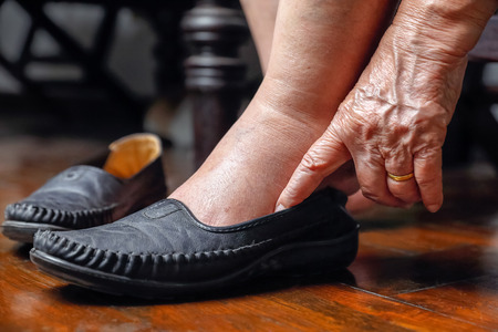Elderly woman swollen feet putting on shoes