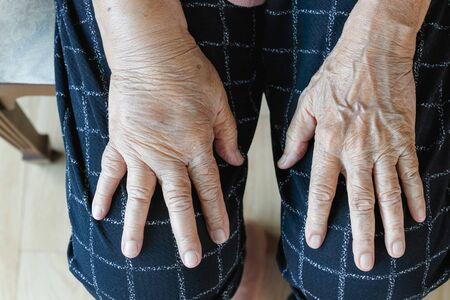 Elderly swollen hand or edema hand
