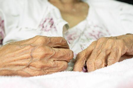 Elderly woman fasten buttons on dress, progressive brain disorder Close up hand
