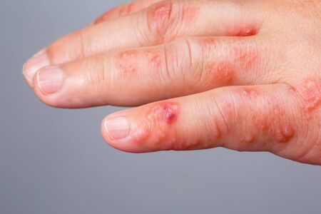 Shingles, Zoster or Herpes Zoster symptoms on arm Stock Photo