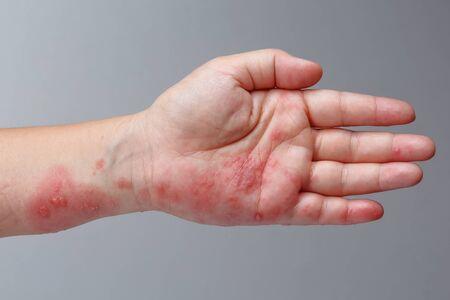 Síntomas de herpes zóster, herpes zóster o herpes zóster en el brazo