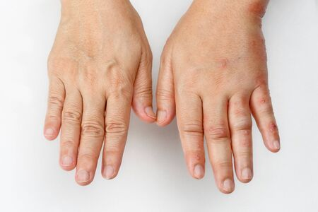 Herpes zóster que causa hinchazón en la mano