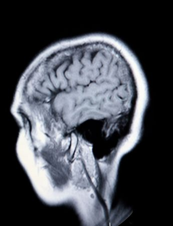 A real MRI MRA (Magnetic Resonance Angiogram) of the brain in monochrome