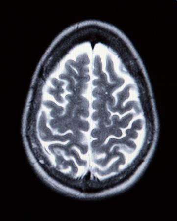 A real MRI MRA (Magnetic Resonance Angiogram) of the brain vasculature (arteries) in monochrome