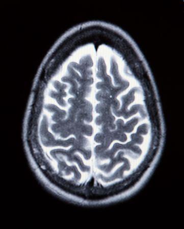 resonancia magnetica: Un verdadero RM  ERM (Resonancia Magn�tica Angiogram) de la vasculatura del cerebro (arterias) en monocromo  Foto de archivo