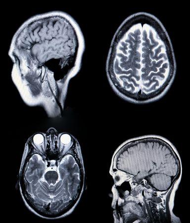 RM de alta resolución / ARM (Angiografía por resonancia magnética) de la vasculatura del cerebro (arterias) Monitores CRT de grano visible Foto de archivo - 3647044