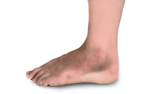 白い背景の上にあざで覆われて腫れの骨折した足を持つ女性 写真素材