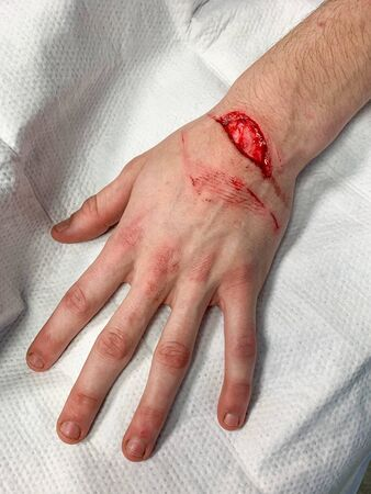 Injury from a cut on the wrist and hand requiring stitches in the Emergency room