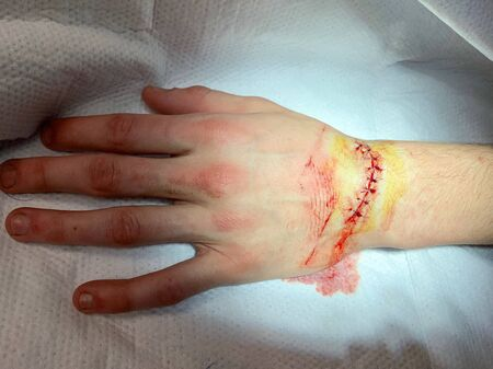Injury from a cut on the wrist and hand resulting in stitches in the Emergency room 스톡 콘텐츠