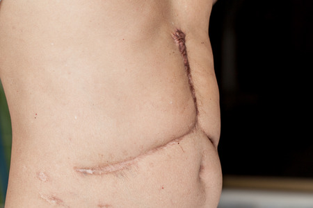 rumen: scar on his stomach after surgery