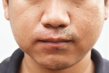 vette huid gezicht