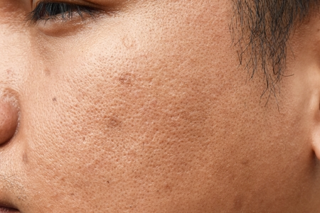 pores and oily on surface young asian man face skin do not take care for a long time Standard-Bild - 117763772
