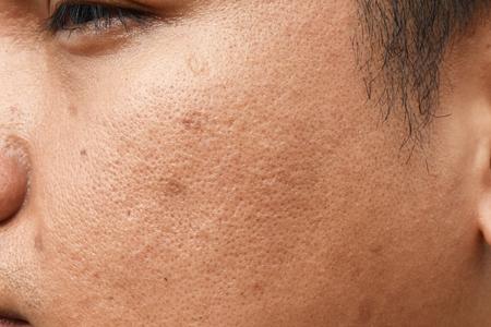 Poros y grasa en la superficie de la piel de la cara del joven asiático no cuidar durante mucho tiempo