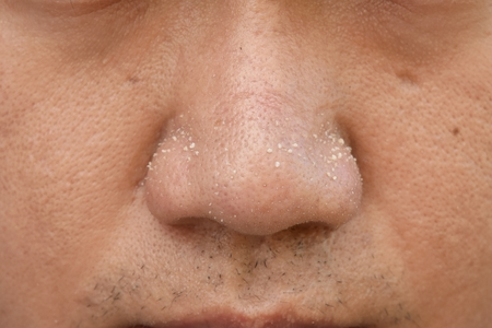 acne vulgaris on nose of asian man