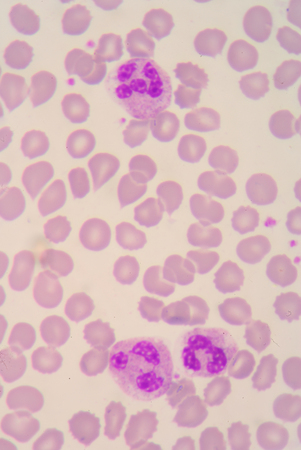 antigen response: Blood smear