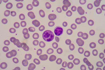 bactericidal: Frotis de sangre