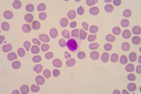 basophil: Blood smear