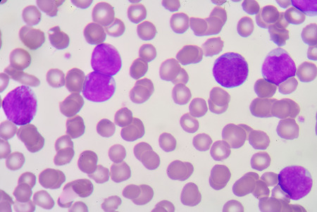 antigen response: blast cell on blood smear