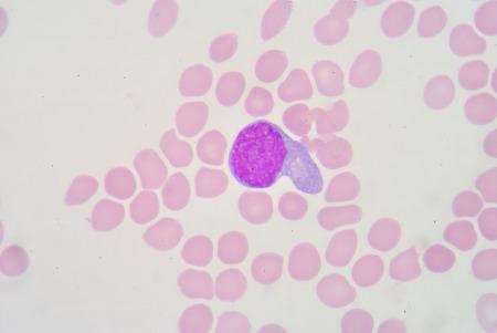 bactericidal: transformar linfocitos Foto de archivo